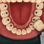 Zobni implantati vam omogočajo lep nasmeh